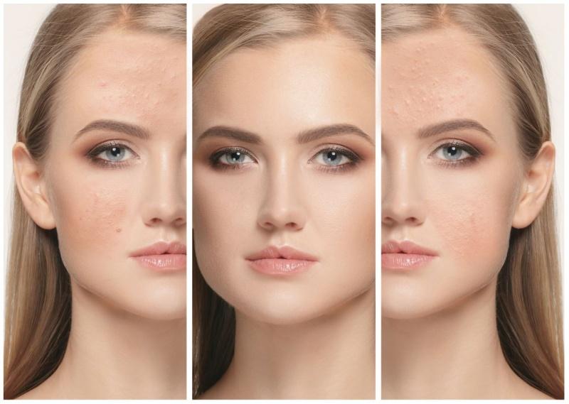 JUVA Skin & Laser Center Blog | Fractora: RF Microneedling, The Ideal Treatment For Acne & Acne Scarring Treatment?