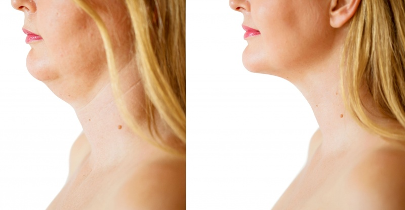 JUVA Skin & Laser Center Blog | Does Your Double Chin Have You Down On Luck? Kybella Is The Ultimate Pick Me Up For the Chin