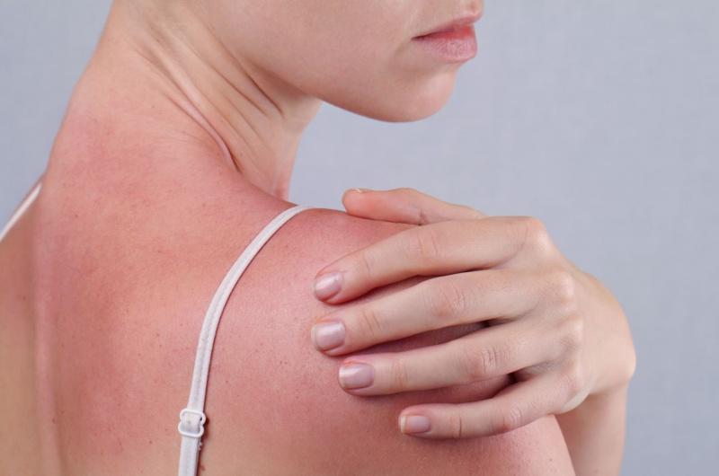 JUVA Skin & Laser Center Blog | Photodynamic Therapy (PDT) for Sun Damaged Skin Is Here!