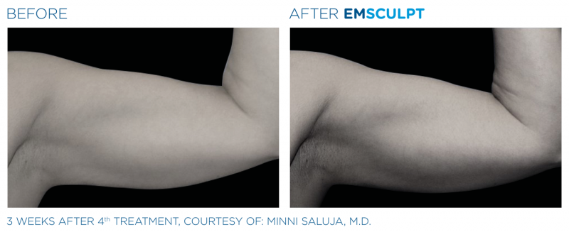 JUVA Skin & Laser Center Blog | Building Your Arms (Biceps and Triceps) With Emsculpt