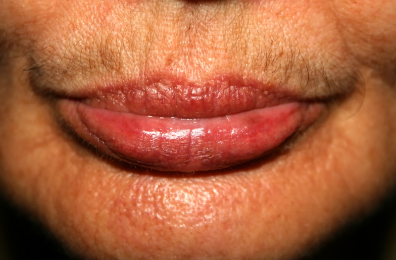 JUVA Skin & Laser Center Blog | How Do I Get Rid of My Embarrassing Upper Lip Mustache? Laser Hair Removal Is The Answer