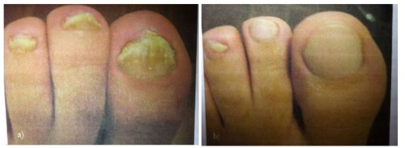 Juva Skin Blog | How to Address Toenail Fungus the Correct Way