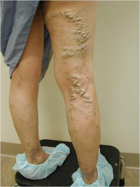 JUVA Skin & Laser Center Blog | Ambulatory Phlebectomy for Varicose Veins