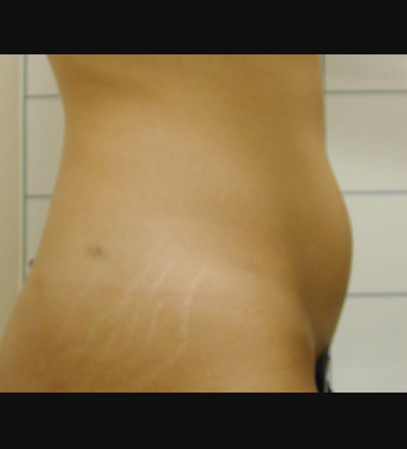 Liposuction Before