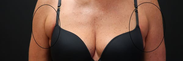 Non-Invasive Fat Removal Gallery - Patient 6735071 - Image 1