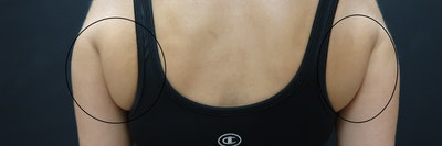 Non-Invasive Fat Removal Gallery - Patient 6735070 - Image 1