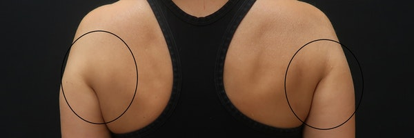 Non-Invasive Fat Removal Gallery - Patient 6735070 - Image 2