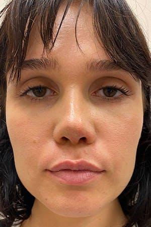 Lip Fillers at Juva Skin in NYC
