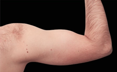 Non-Invasive Fat Removal Gallery - Patient 7626737 - Image 1