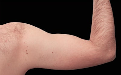 Non-Invasive Fat Removal Gallery - Patient 7626737 - Image 2