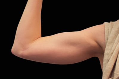 Non-Invasive Fat Removal Gallery - Patient 7626738 - Image 2