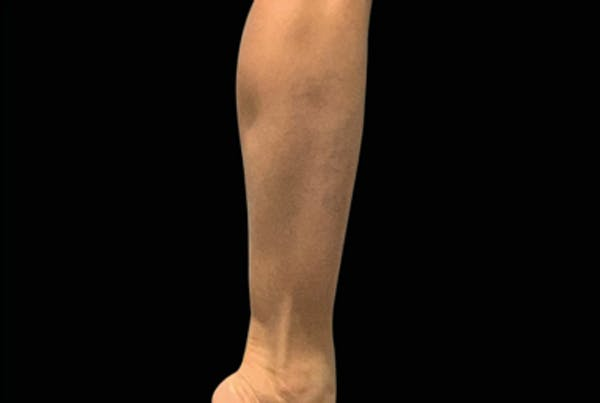Non-Invasive Fat Removal Gallery - Patient 7626739 - Image 1