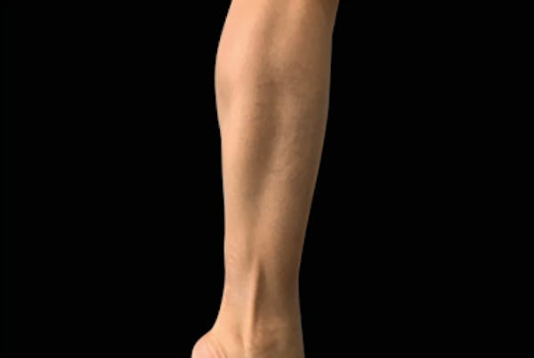 Non-Invasive Fat Removal Gallery - Patient 7626739 - Image 2