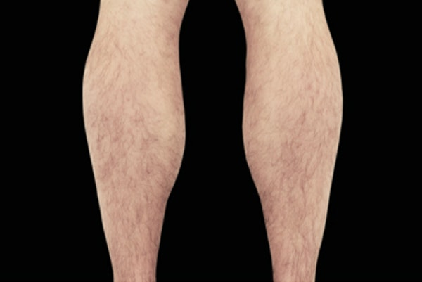 Non-Invasive Fat Removal Gallery - Patient 7626740 - Image 1