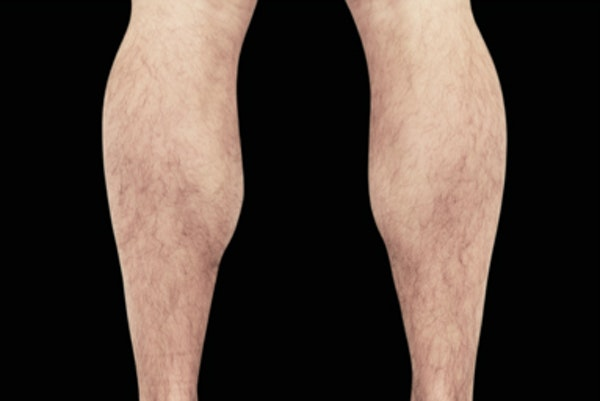 Non-Invasive Fat Removal Gallery - Patient 7626740 - Image 2