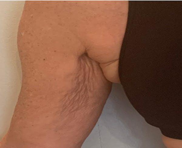 Skin Tightening Gallery - Patient 7626767 - Image 1