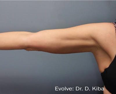 Skin Tightening Gallery - Patient 7626765 - Image 2