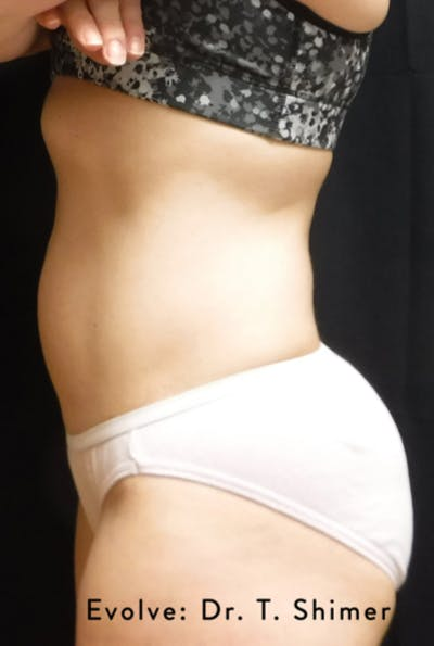 Non-Invasive Fat Removal Gallery - Patient 7626768 - Image 2