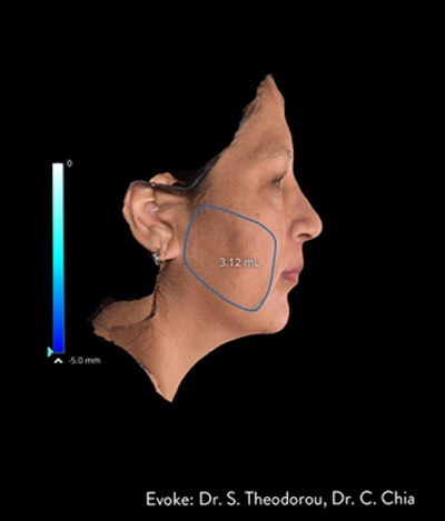 Facial Rejuvenation Gallery - Patient 7626780 - Image 1