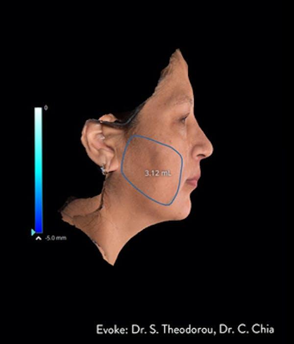 Facial Rejuvenation Gallery - Patient 7626780 - Image 1