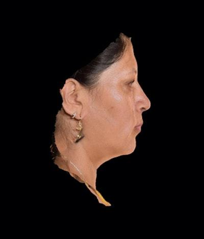 Facial Rejuvenation Gallery - Patient 7626780 - Image 2