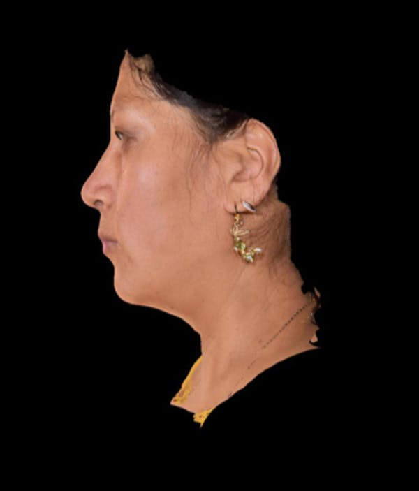 Facial Rejuvenation Gallery - Patient 7626780 - Image 3
