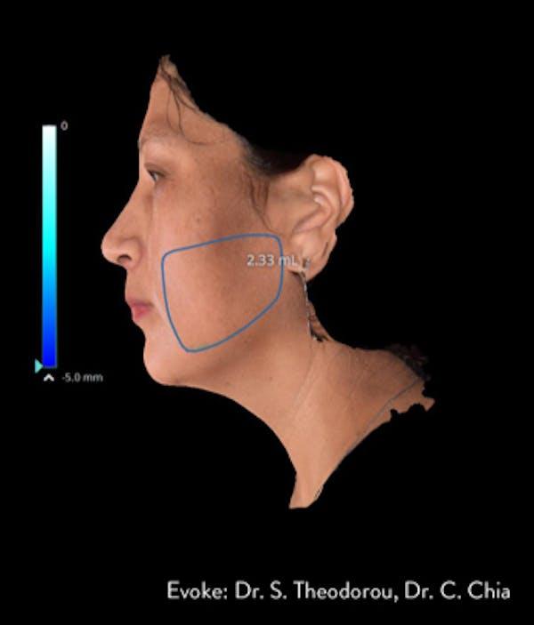 Facial Rejuvenation Gallery - Patient 7626780 - Image 4