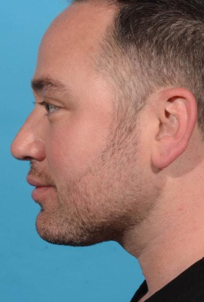 Facial Rejuvenation Gallery - Patient 7626781 - Image 2