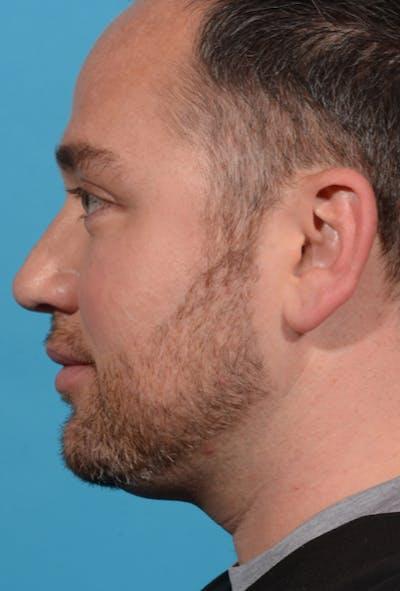 Facial Rejuvenation Gallery - Patient 7626781 - Image 19