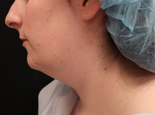 Liposuction Gallery - Patient 8485021 - Image 3