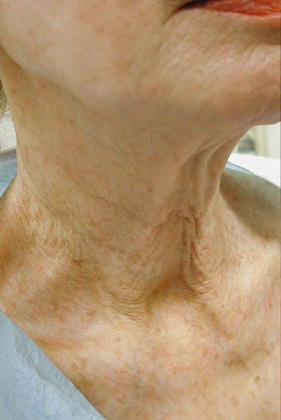 Neck Rejuvenation Gallery - Patient 49967496 - Image 1