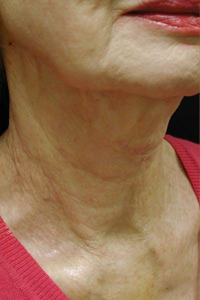 Neck Rejuvenation Gallery - Patient 49967496 - Image 2