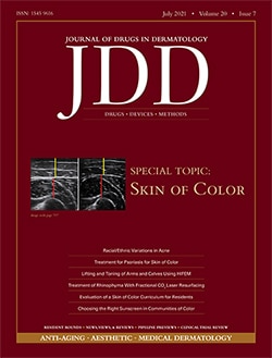 JUVA Skin & Laser Center Blog | Dr. Bruce Katz is published in a study in the Journal of Drugs in Dermatology in an article entitled