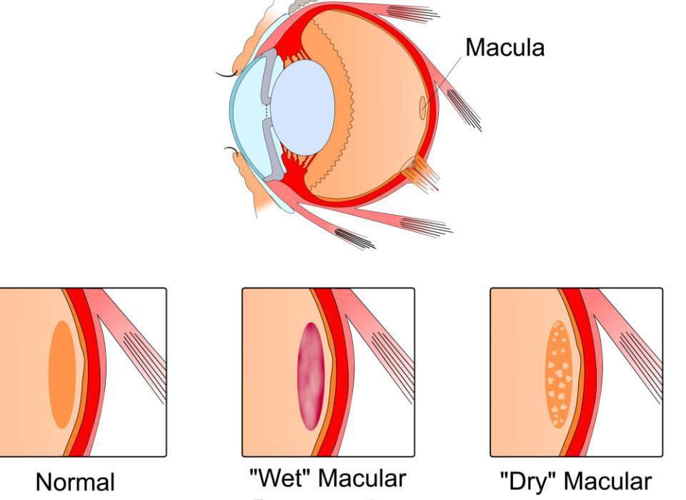 Beverly Hills Ophthalmology Blog | Age-Related Macular Degeneration