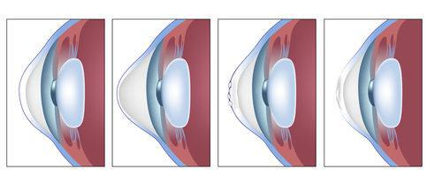 Beverly Hills Ophthalmology Blog | What to Know About Keratoconus