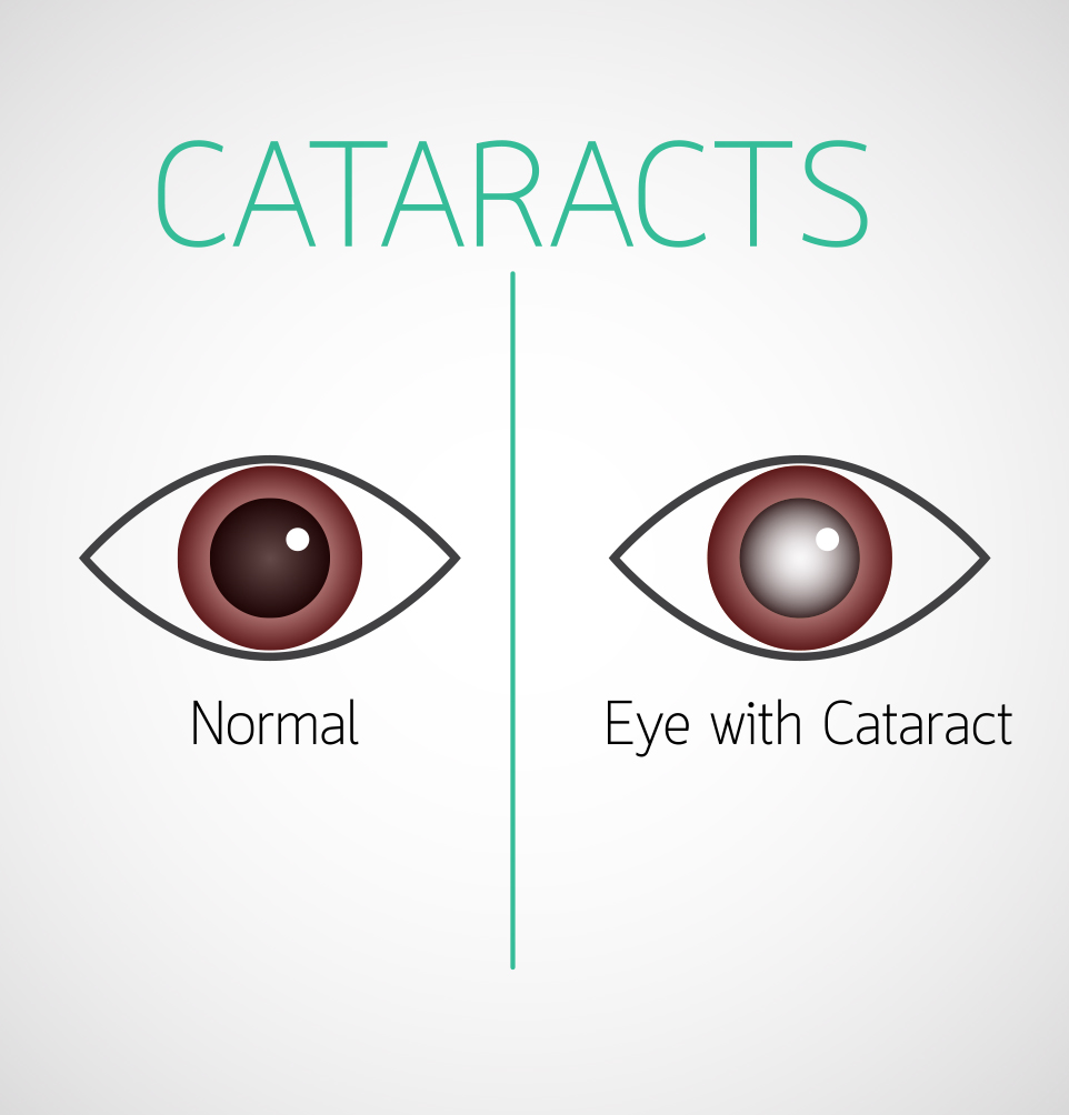 2-D image of how cataract surgery works