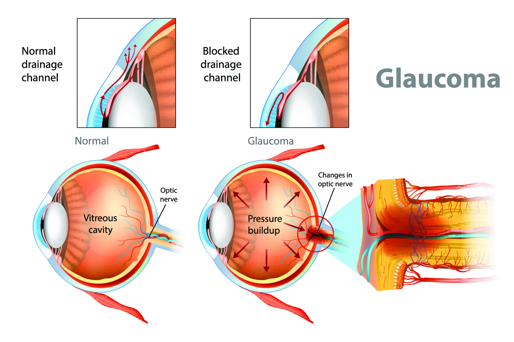 computer generated image of how a glaucoma treatment works