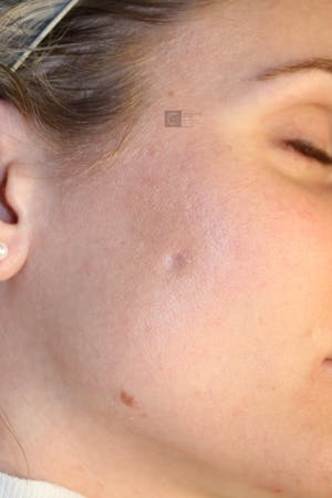 Before and after scar treatment