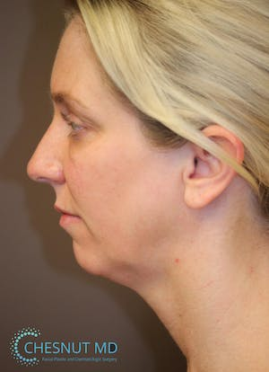 Before and after structural chin augmentation