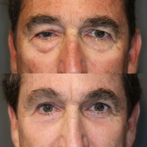 Before and After Enigma Lift - Brows