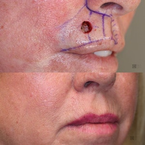 Before and After Reconstruction & Mohs Surgery