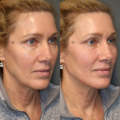 Dermal Fillers Gallery - Patient 8560372 - Image 1
