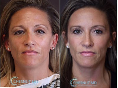 Blepharoplasty Gallery - Patient 8560374 - Image 1