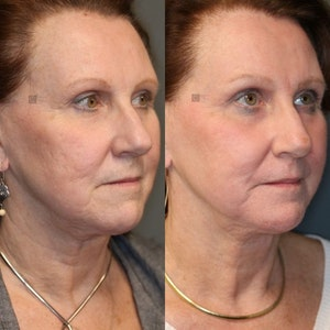 Before and After Virtuoso Lift Tightening