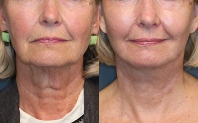 Laser Resurfacing Gallery - Patient 8560397 - Image 1