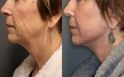Laser Resurfacing Gallery - Patient 8560426 - Image 1