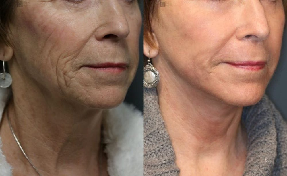 VidaLift - Face Gallery - Patient 8560403 - Image 2