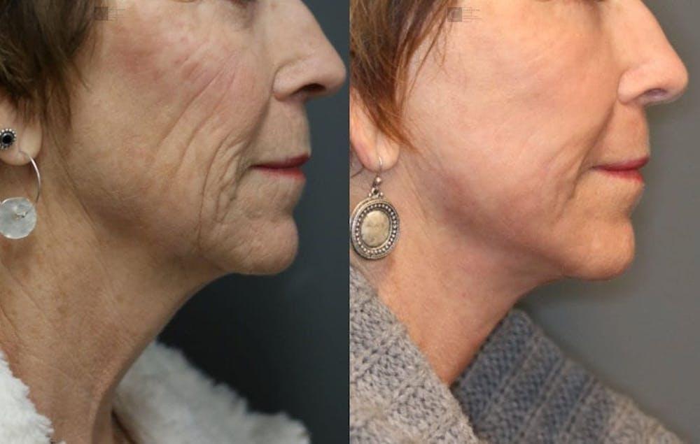 VidaLift - Face Gallery - Patient 8560403 - Image 3