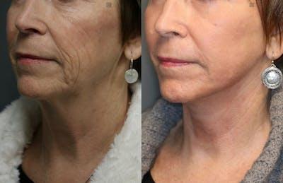 VidaLift - Face Gallery - Patient 8560403 - Image 4