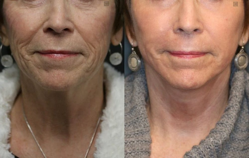 VidaLift - Face Gallery - Patient 8560403 - Image 5